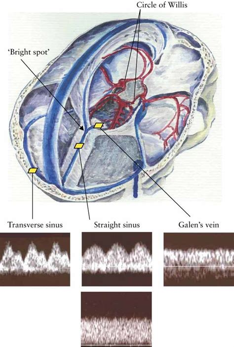 Acute changes of cerebral venous blood flow in growth