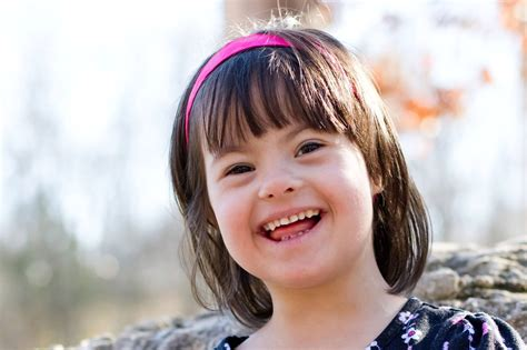 Down syndrome: the stereotypes, the joys, the facts